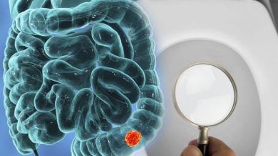 Photo of Bowel cancer: Spotting narrower stools than normal could indicate the deadly disease