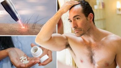 Photo of Best hair loss treatment: Three non-surgical treatments backed by concrete evidence