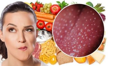 Photo of Vitamin B12 deficiency symptoms: Three visual clues on your tongue – what to look for